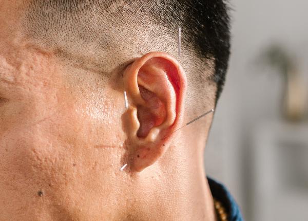 ear pinzatura